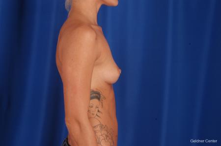 Chicago Breast Augmentation 2328 - Before Image 2