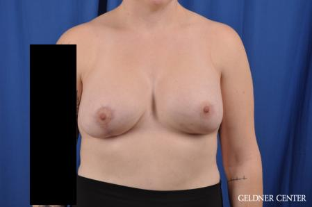 Breast Augmentation: Patient 178 - After Image 1
