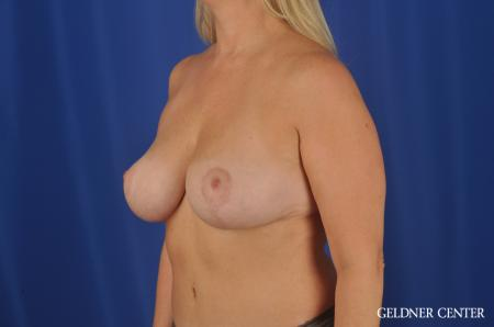 Breast Lift Streeterville, Chicago 8754 -  After 4
