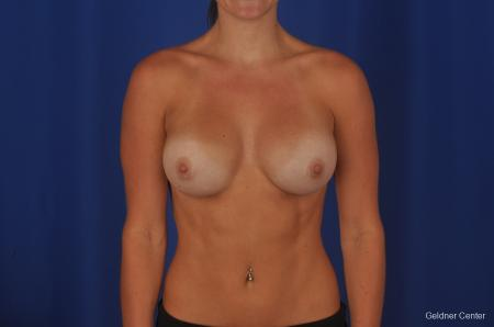 Chicago Breast Augmentation 2393 -  After Image 1