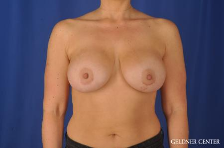 Breast Augmentation: Patient 80 - After Image 1