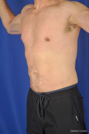 Liposuction For Men: Patient 9 - After Image 5