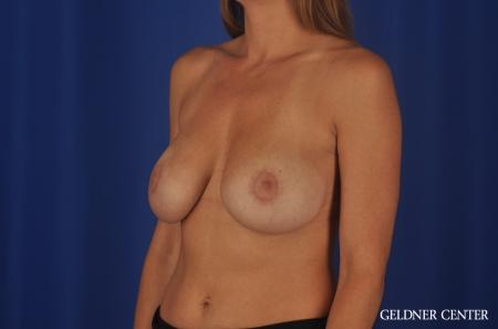 Chicago Breast Augmentation 5476 -  After Image 4