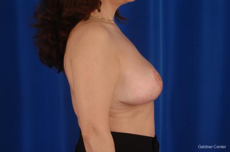 Breast Reduction Streeterville, Chicago 2289 -  After Image 2
