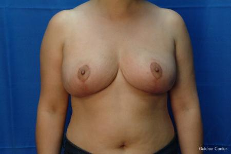 Chicago Breast Reduction 2416 -  After Image 1