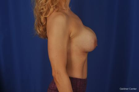 Chicago Complex Breast Augmentation 2073 - Before Image 2