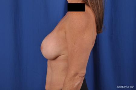 Complex Breast Augmentation: Patient 35 - Before Image 4