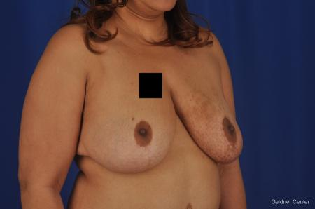 Chicago Breast Reduction 2375 -  After Image 3