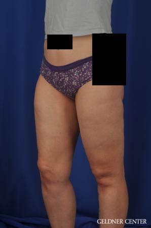 Liposuction: Patient 44 - After Image 5