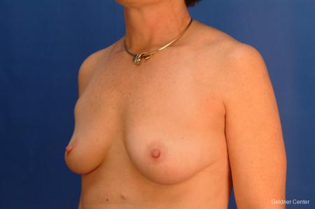 Breast Augmentation Hinsdale, Chicago 2541 - Before and After Image 4