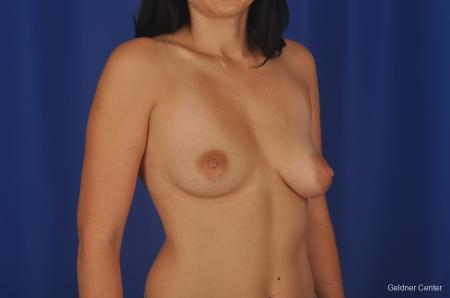 Chicago Breast Augmentation 2305 - Before Image 2