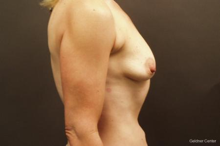 Breast Augmentation Hinsdale, Chicago 2632 - Before Image 2