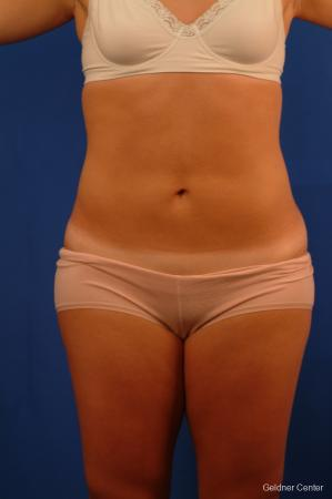 Vaser lipo patient 2514 before and after photos - After Image