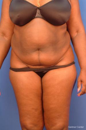 Liposuction: Patient 19 - Before Image