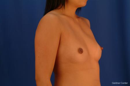 Underarm Breast Augmentation Streeterville, Chicago 2621 - Before Image 3