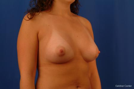 Chicago Breast Augmentation 2517 -  After Image 3