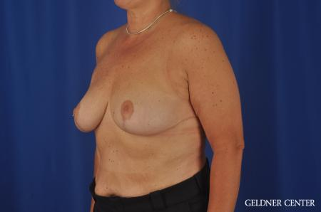 Breast Reduction Lake Shore Dr, Chicago 3223 -  After Image 4