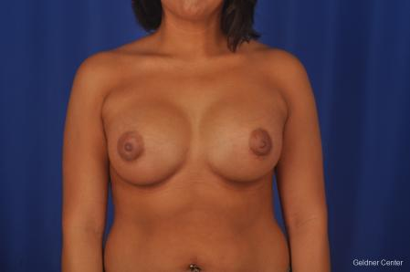 Breast Augmentation: Patient 156 - After Image 1