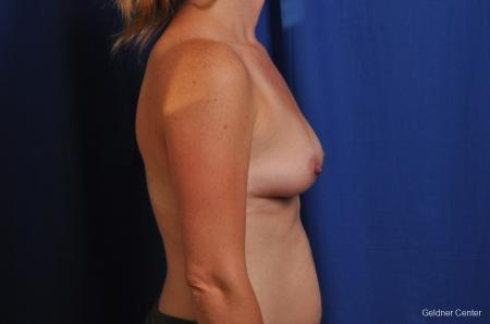 Breast Augmentation Hinsdale, Chicago 2531 - Before Image 2