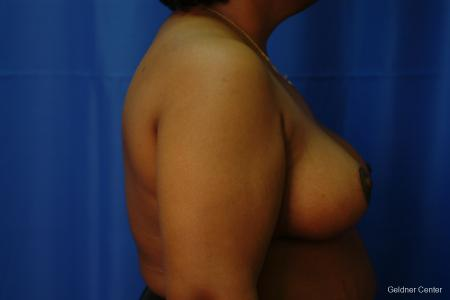 Chicago Breast Reduction 2406 -  After Image 2