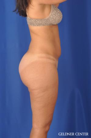 Liposuction: Patient 47 - Before Image 3