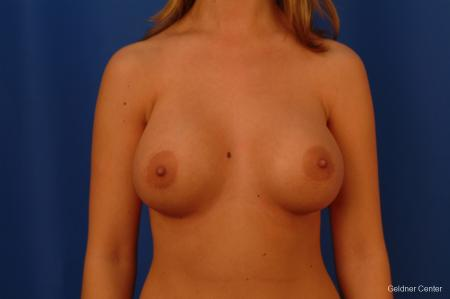 Breast Augmentation Lake Shore Dr, Chicago 2533 -  After Image 1