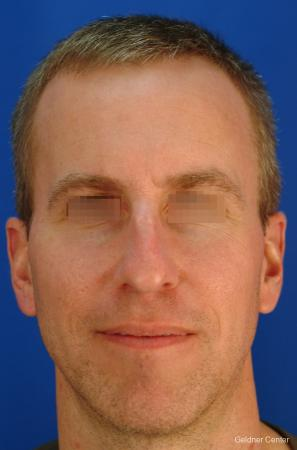 Rhinoplasty-for-men: Patient 1 - Before Image