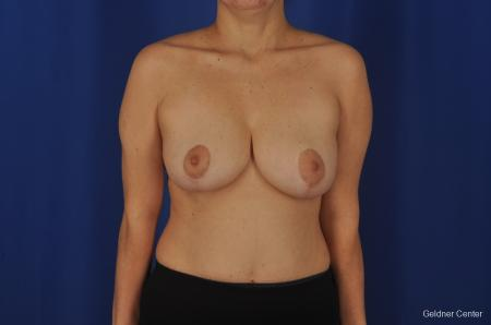 Chicago Breast Reduction 2068 - Before Image