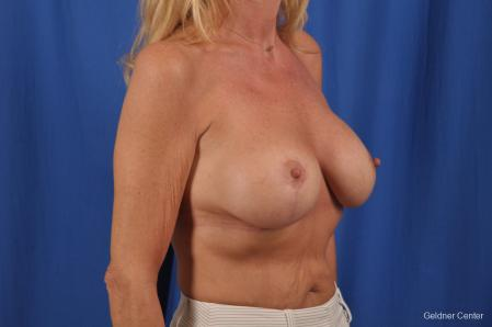 Breast Augmentation: Patient 154 - After Image 3