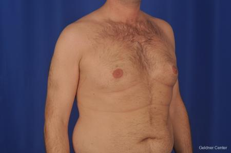 Gynecomastia: Patient 1 - Before Image 3