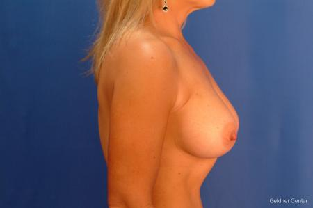 Breast Augmentation Hinsdale, Chicago 2632 -  After Image 2