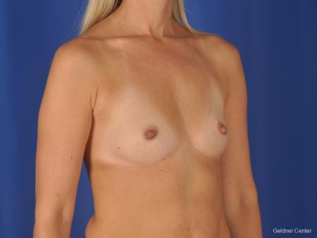 Breast Augmentation: Patient 148 - Before Image 2