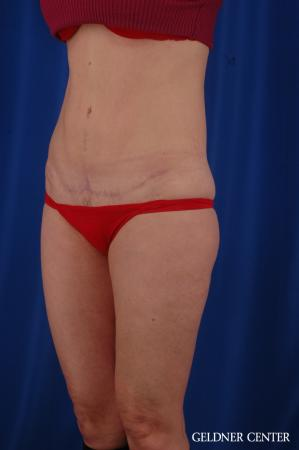Tummy Tuck: Patient 36 - After Image 4