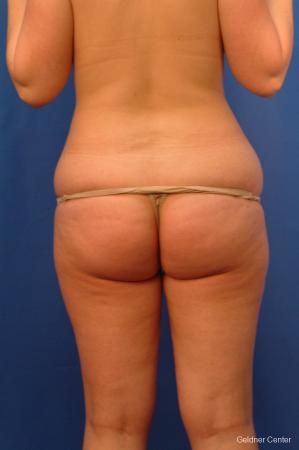 Liposuction: Patient 13 - Before and After Image 5