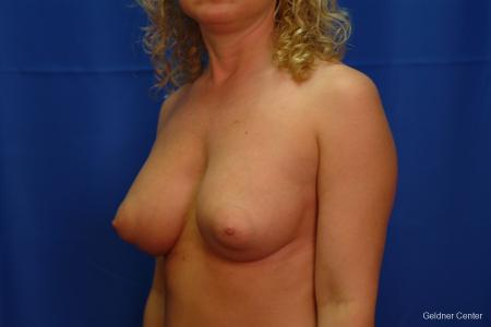 Breast Augmentation Lake Shore Dr, Chicago 2436 -  After Image 5