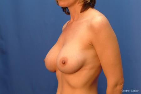 Chicago Complex Breast Augmentation 2415 -  After Image 4
