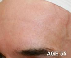 Laser: Patient 2 - After Image