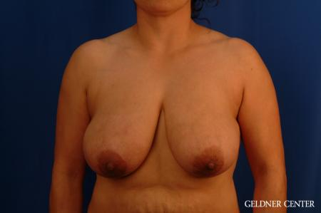 Breast Reduction Hinsdale, Chicago 2630 - Before Image 1