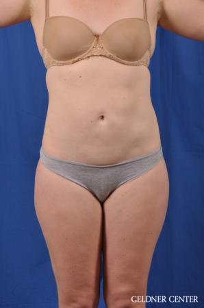 Liposuction: Patient 48 - After 1