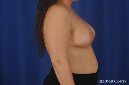 Breast Augmentation Hinsdale, Chicago 5466 -  After Image 3
