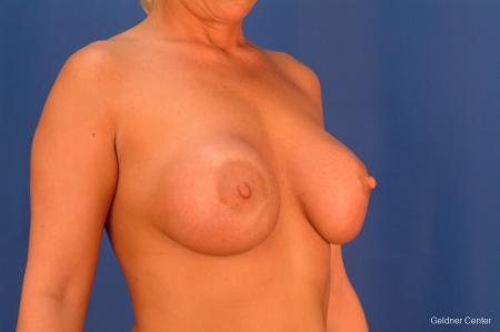 Complex Breast Augmentation Streeterville, Chicago 2428 - Before Image 3
