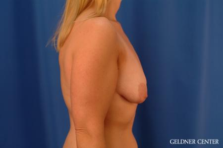 Breast Lift: Patient 50 - Before Image 3
