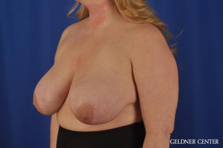 Breast Reduction: Patient 32 - Before and After Image 4
