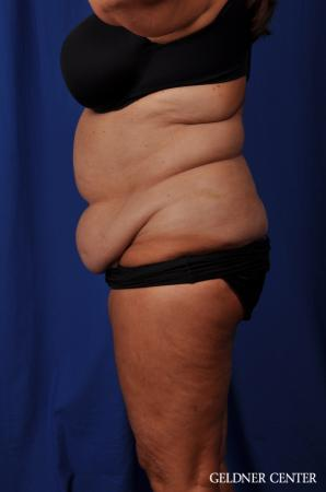 Liposuction: Patient 24 - Before and After Image 5