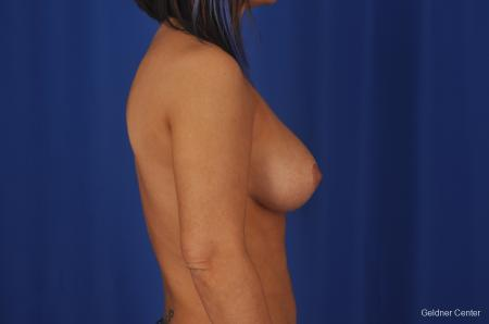 Chicago Complex Breast Augmentation 2336 -  After Image 2