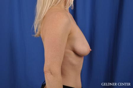 Breast Augmentation: Patient 83 - Before Image 2
