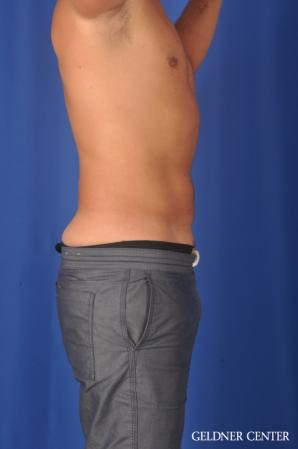 Liposuction For Men: Patient 12 - After Image 3