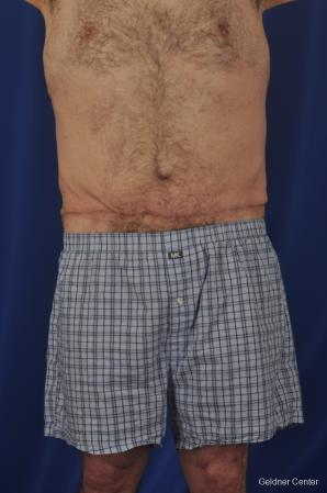 Abdominoplasty-for-men: Patient 3 - After Image