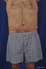 Abdominoplasty-for-men: Patient 3 - After Image