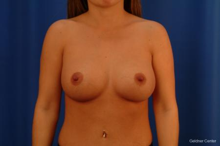 Chicago Breast Augmentation 2526 -  After Image 1